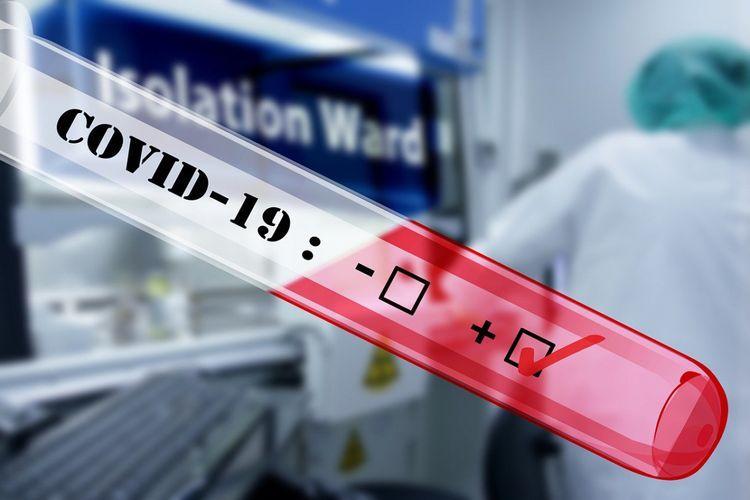 Virusa yoluxanların sayında yenə rekord artım oldu... -